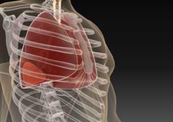 Плеврит при злокачественных опухолях: значение симптома