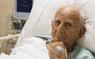 Миеломная болезнь: симптомы, диагностика, лечение
