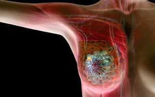 Инфильтративные формы рака молочной железы