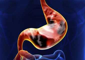 Самая агрессивная форма рака желудка — перстневидноклеточный рак