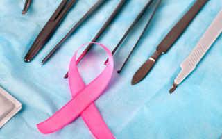 Рак молочной железы: современный подход к хирургическому лечению