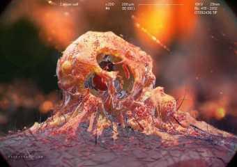 Найден методотключать лекарственную резистентность раковых клеток