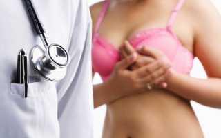 Предупреждение развития рака молочной железы