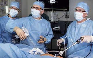 Рак ободочной кишки: симптомы, диагностика, лечение, выживаемость