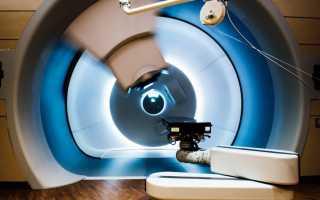 Возможности лучевой терапии при лечении рака предстательной железы