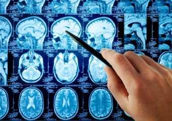 «Рак мозга» — определение понятия, причины, симптомы, лечение