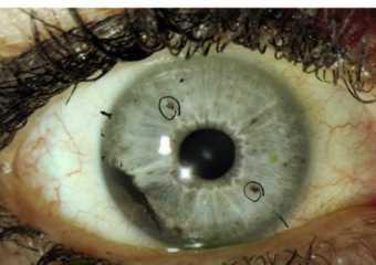 Меланома с поражением различных отделов глаза: симптомы, диагностика, лечение