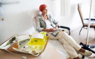 Лимфома желудка: симптомы, диагностика, лечение, прогноз