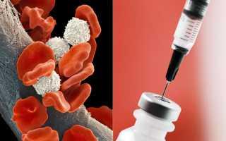 Лейкозы: причины, диагностика, лечение
