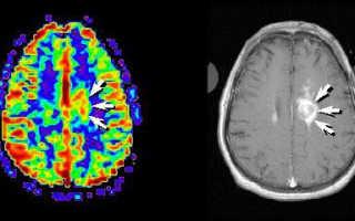 Лимфома с первичным поражением головного и спинного мозга