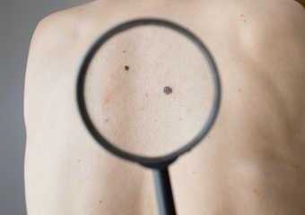 Виды меланомы у детей и подростков
