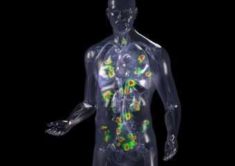 Какие органы поражают метастазы рака желудка?