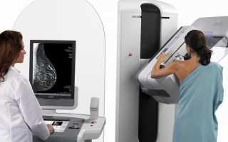 Рак молочной железы — самая частая опухоль у женщин