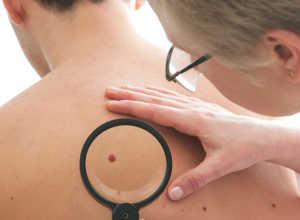 Метастазы меланомы: симптомы, лечение