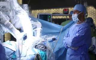 Лечение рака предстательной железы: обзор всех современных методов