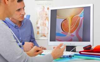 Рак предстательной железы: всё, что нужно знать мужчинам о болезни
