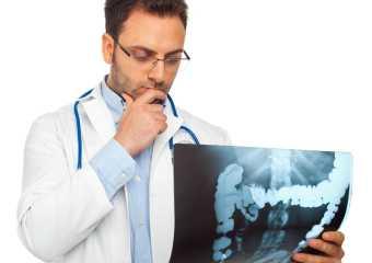 Рак сигмовидной кишки: причины, лечение, прогноз