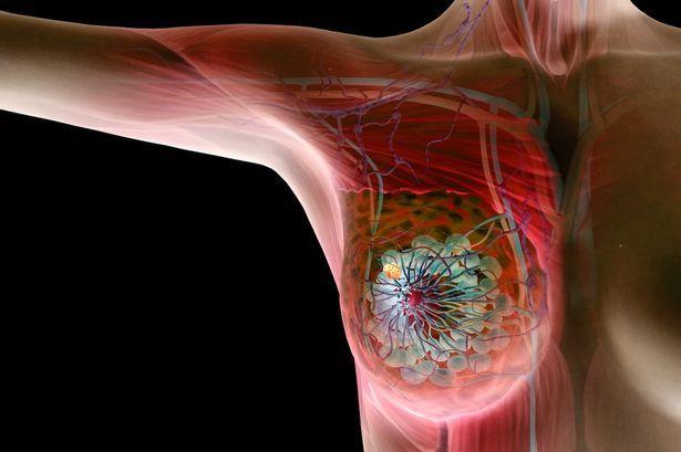 Анатомическая схема молочной железы с опухолевым узлом