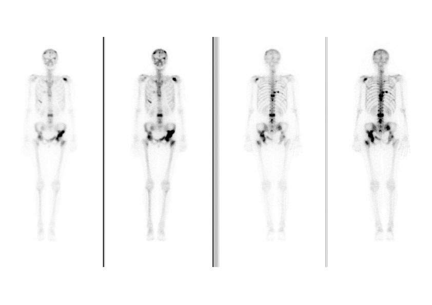 Сцинтиграфия костей