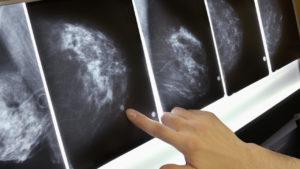 Маммограммы с патологическим участком