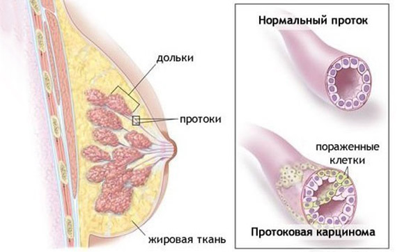Протоковый рак. Схема.