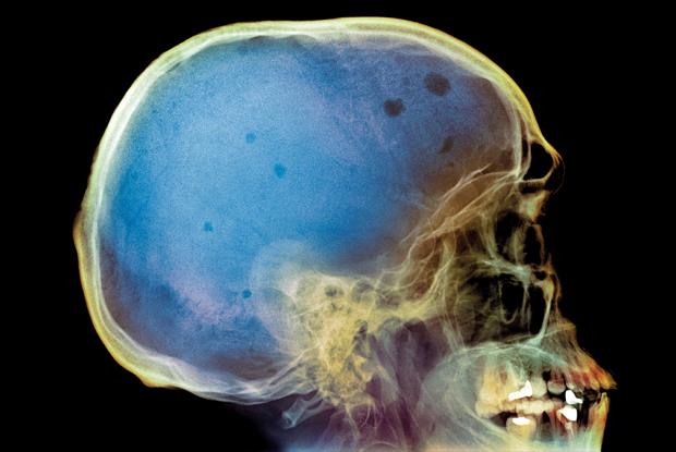 Рентгеновский снимок черепа