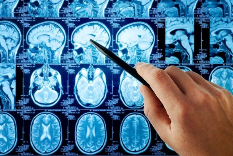 КТ снимки головного мозга
