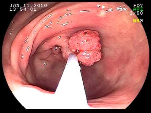 Эндоскопическая полипэктомия